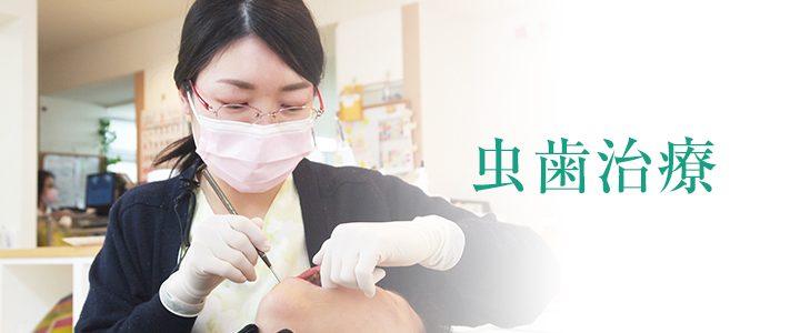 虫歯治療(一般治療)
